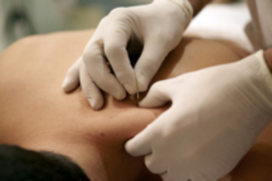 dry needling to relieve stress and pain
